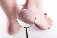 Possible Causes of Cracked Heels