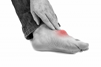 Possible Risk Factors For Developing Gout